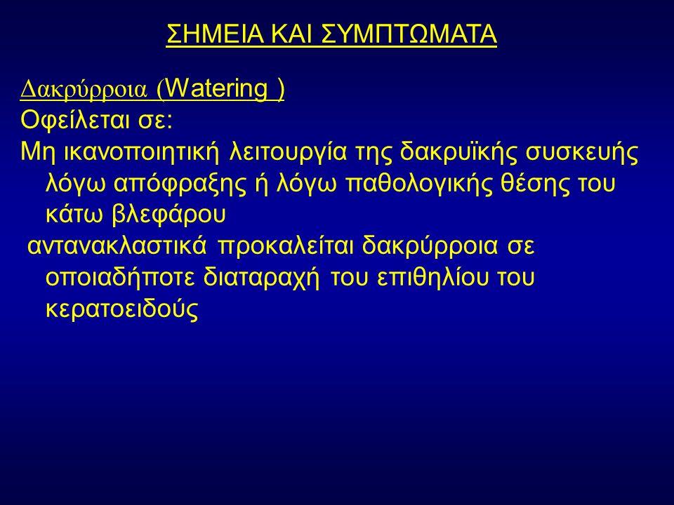 ΣΗΜΕΙΑ ΚΑΙ ΣΥΜΠΤΩΜΑΤΑ Δακρύρροια ( Watering ) Οφείλεται σε: Μη ικανοποιητική λειτουργία της δακρυϊκής συσκευής λόγω απόφραξης ή λόγω παθολογικής θέσης του κάτω βλεφάρου αντανακλαστικά προκαλείται δακρύρροια σε οποιαδήποτε διαταραχή του επιθηλίου του κερατοειδούς