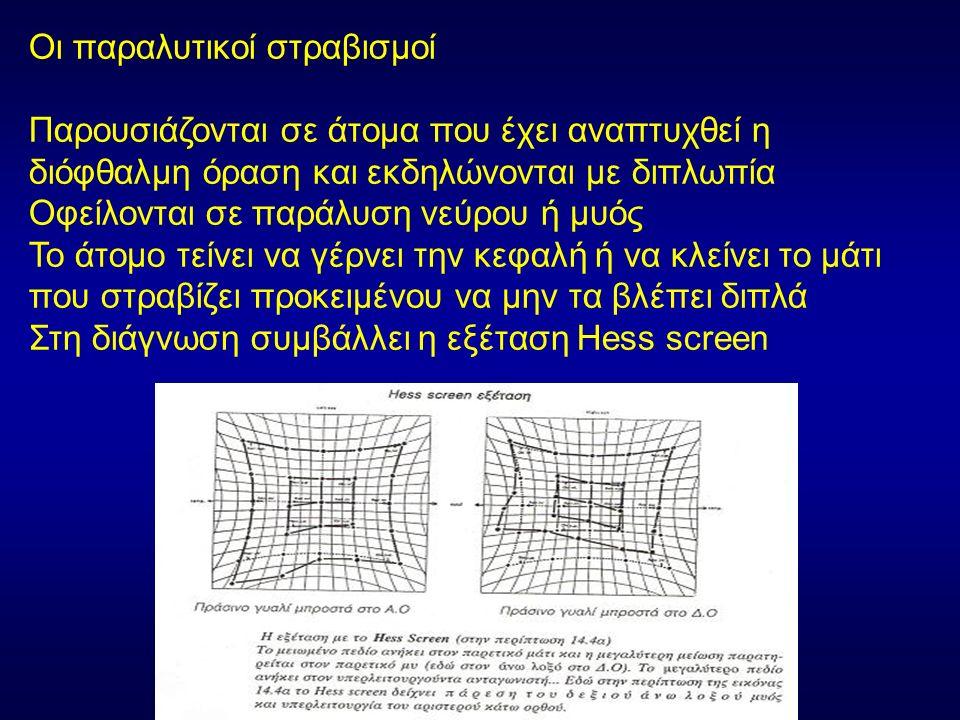 Οι παραλυτικοί στραβισμοί- Παράλυση του κοινού κινητικού νεύρου Εκδηλώνεται με: Διπλωπία (εκτός εάν η πτώση του βλεφάρου καλύπτει την κόρη) Πτώση βλεφάρου Απαγωγή του βολβού (το μάτι πηγαίνει προς τα έξω και ελαφρά προς τα κάτω) Μπορεί να υπάρχει μυδρίαση