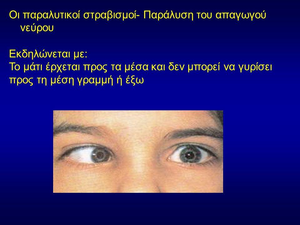 Οι παραλυτικοί στραβισμοί- Παράλυση του απαγωγού νεύρου Εκδηλώνεται με: Το μάτι έρχεται προς τα μέσα και δεν μπορεί να γυρίσει προς τη μέση γραμμή ή έ