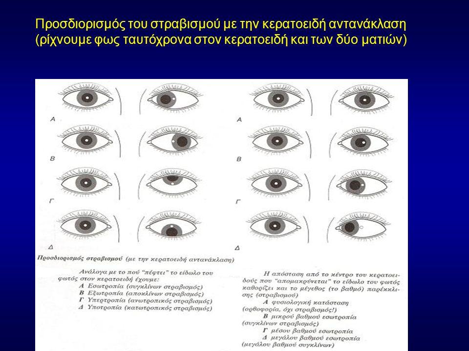 Προσδιορισμός του στραβισμού με την κερατοειδή αντανάκλαση (ρίχνουμε φως ταυτόχρονα στον κερατοειδή και των δύο ματιών)