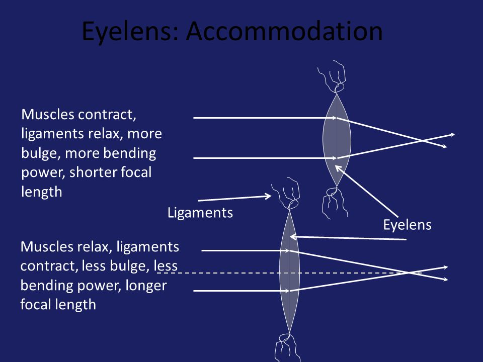 Eyelens: Accommodation Muscles contract, ligaments relax, more bulge, more bending power, shorter focal length Muscles relax, ligaments contract, less bulge, less bending power, longer focal length Ligaments Eyelens