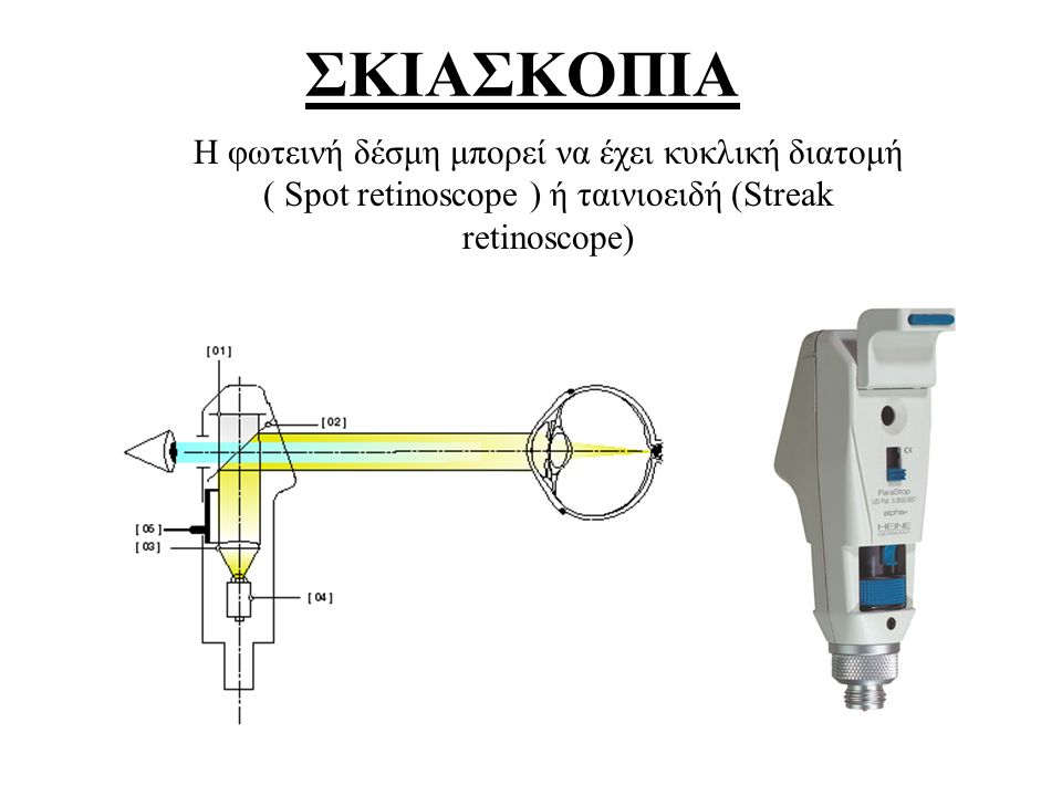 ΣΚΙΑΣΚΟΠΙΑ Η φωτεινή δέσμη μπορεί να έχει κυκλική διατομή ( Spot retinoscope ) ή ταινιοειδή (Streak retinoscope)
