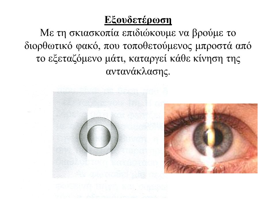 Εξουδετέρωση Με τη σκιασκοπία επιδιώκουμε να βρούμε το διορθωτικό φακό, που τοποθετούμενος μπροστά από το εξεταζόμενο μάτι, καταργεί κάθε κίνηση της αντανάκλασης.