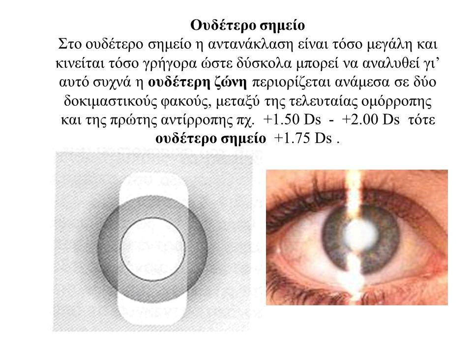 Oυδέτερο σημείο Στο ουδέτερο σημείο η αντανάκλαση είναι τόσο μεγάλη και κινείται τόσο γρήγορα ώστε δύσκολα μπορεί να αναλυθεί γι' αυτό συχνά η ουδέτερη ζώνη περιορίζεται ανάμεσα σε δύο δοκιμαστικούς φακούς, μεταξύ της τελευταίας ομόρροπης και της πρώτης αντίρροπης πχ.