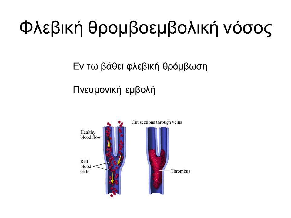 Φλεβική θρομβοεμβολική νόσος Εν τω βάθει φλεβική θρόμβωση Πνευμονική εμβολή