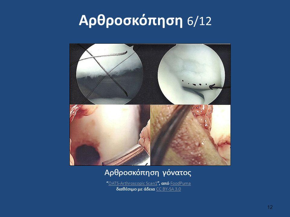 Αρθροσκόπηση 6/12 12 Αρθροσκόπηση γόνατος OATS-Arthroscopic Scan1 , από FoodPuma διαθέσιμο με άδεια CC BY-SA 3.0OATS-Arthroscopic Scan1FoodPumaCC BY-SA 3.0