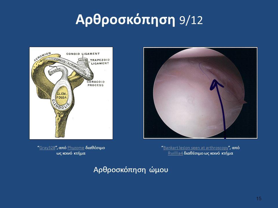 Αρθροσκόπηση 9/12 15 Αρθροσκόπηση ώμου Gray328 , από Phyzome διαθέσιμο ως κοινό κτήμαGray328Phyzome Bankart lesion seen at arthroscopy , από Rwillia4 διαθέσιμο ως κοινό κτήμαBankart lesion seen at arthroscopy Rwillia4