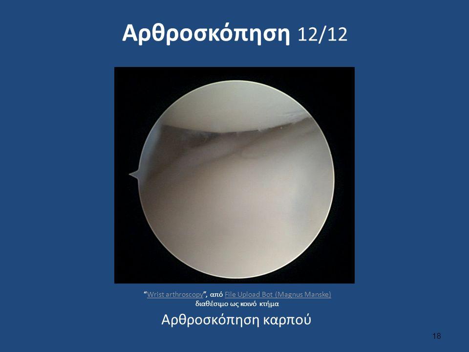 Αρθροσκόπηση 12/12 18 Αρθροσκόπηση καρπού Wrist arthroscopy , από File Upload Bot (Magnus Manske) διαθέσιμο ως κοινό κτήμαWrist arthroscopyFile Upload Bot (Magnus Manske)
