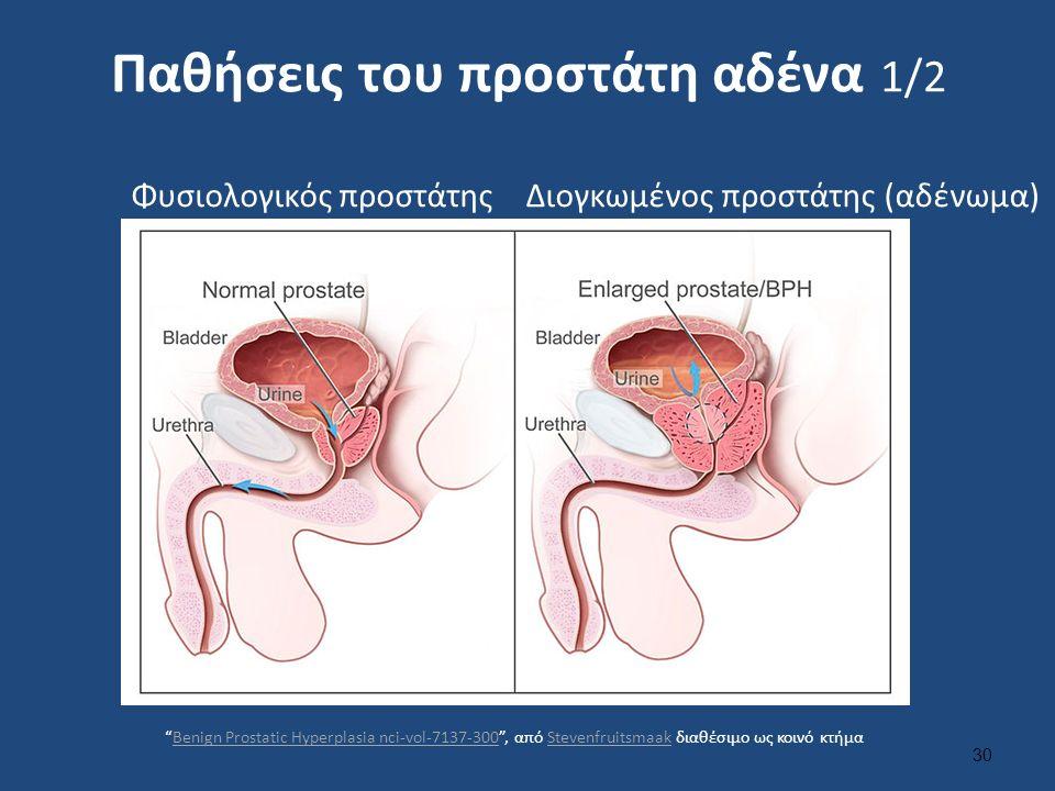 Παθήσεις του προστάτη αδένα 1/2 30 Φυσιολογικός προστάτηςΔιογκωμένος προστάτης (αδένωμα) Benign Prostatic Hyperplasia nci-vol-7137-300 , από Stevenfruitsmaak διαθέσιμο ως κοινό κτήμαBenign Prostatic Hyperplasia nci-vol-7137-300Stevenfruitsmaak