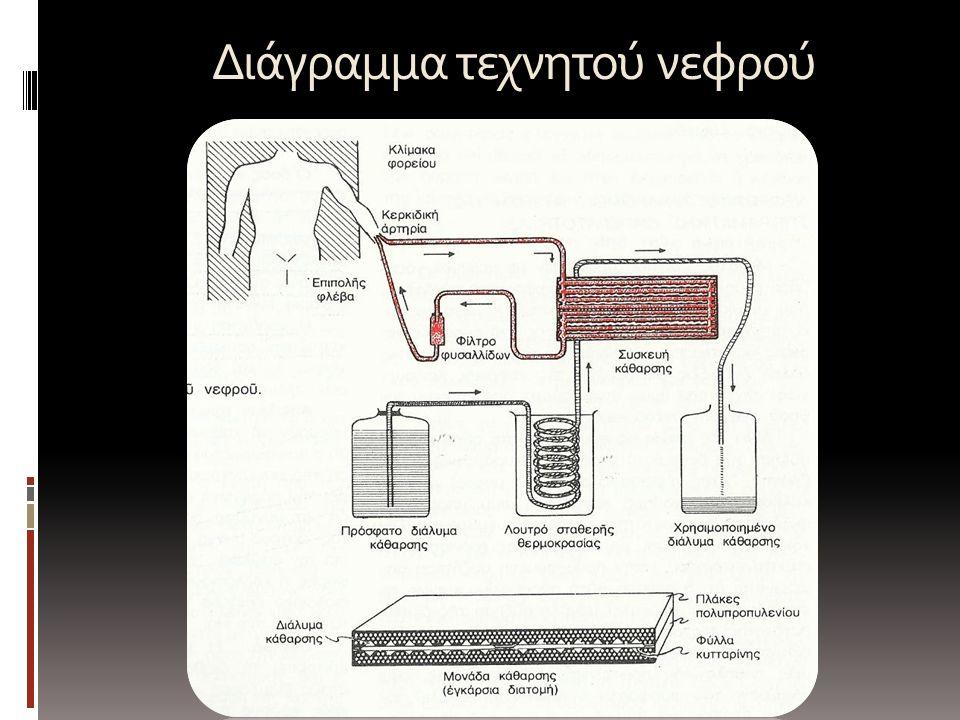 Διάγραμμα τεχνητού νεφρού