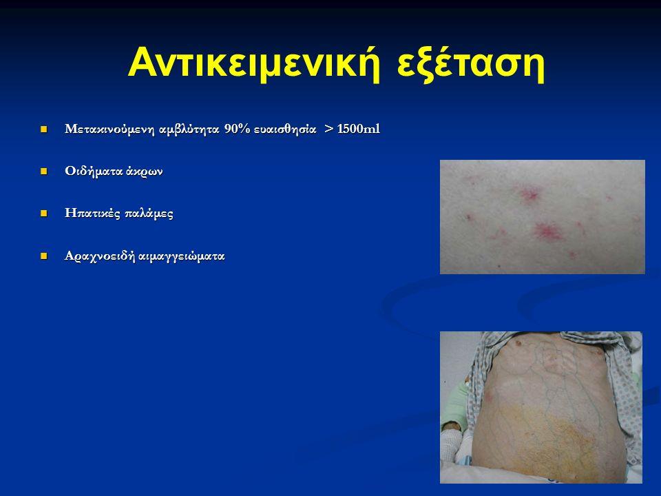 Μετακινούμενη αμβλύτητα 90% ευαισθησία > 1500ml Μετακινούμενη αμβλύτητα 90% ευαισθησία > 1500ml Οιδήματα άκρων Οιδήματα άκρων Ηπατικές παλάμες Ηπατικές παλάμες Αραχνοειδή αιμαγγειώματα Αραχνοειδή αιμαγγειώματα Αντικειμενική εξέταση
