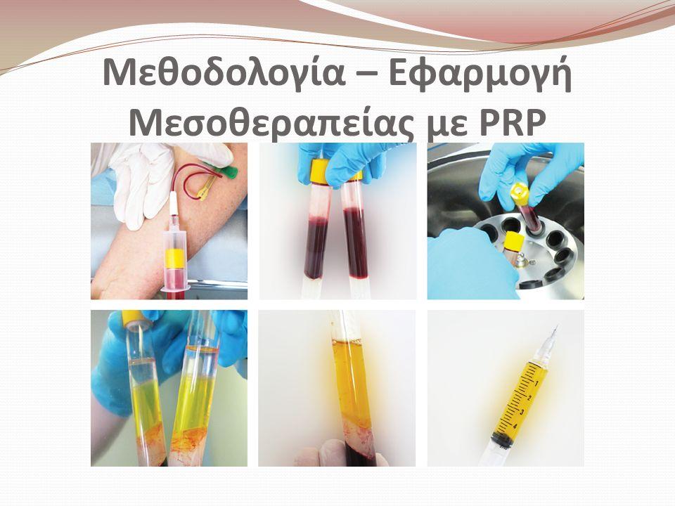 Μεθοδολογία – Εφαρμογή Μεσοθεραπείας με PRP