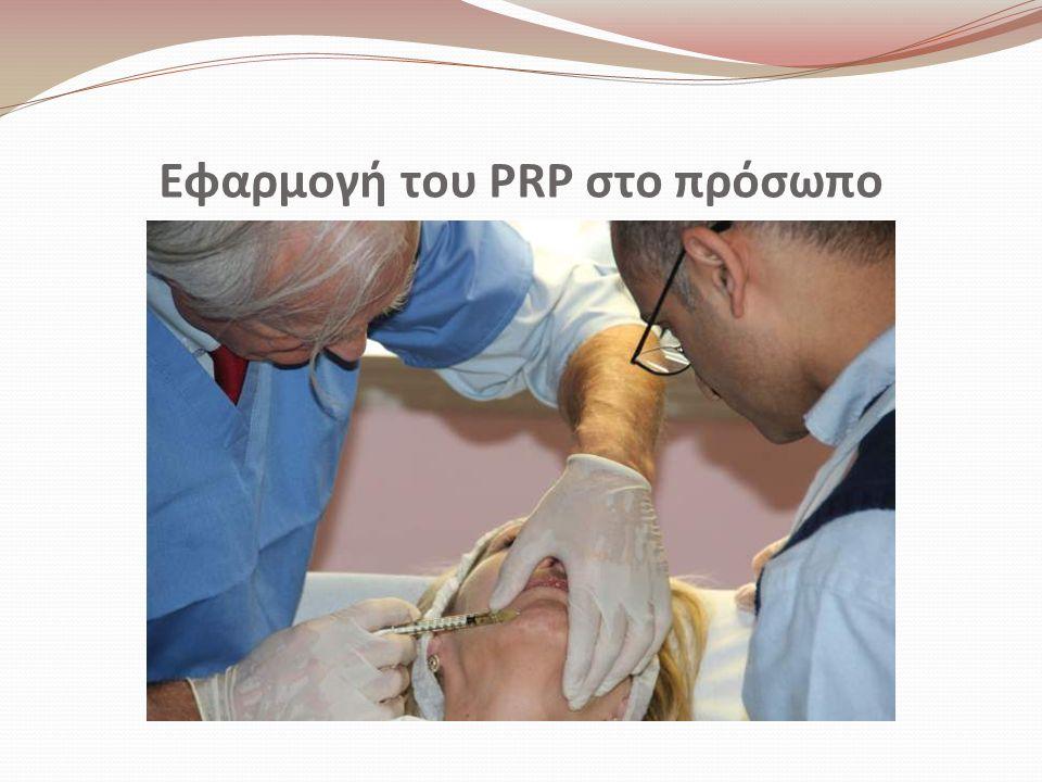 Εφαρμογή του PRP στο πρόσωπο