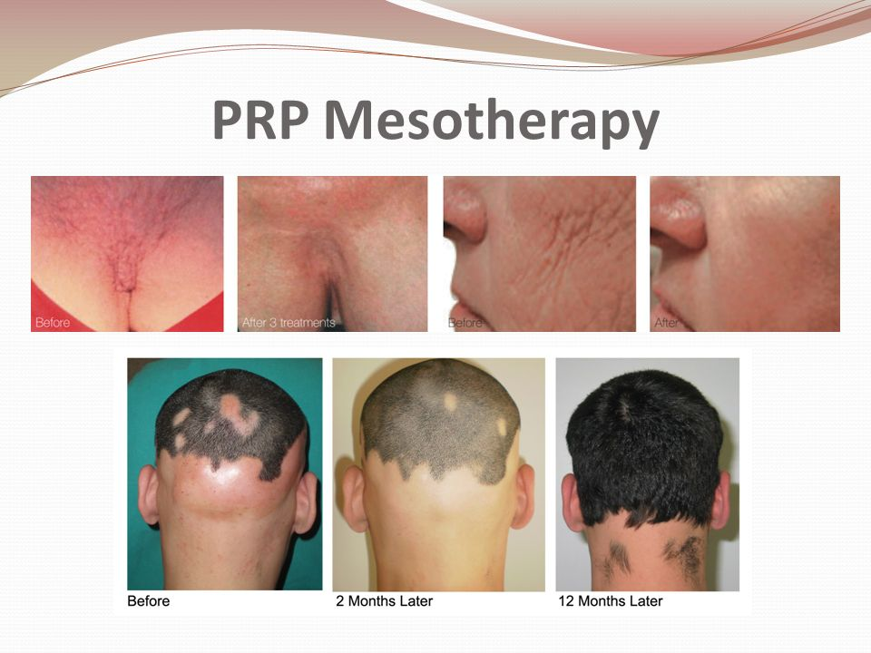 PRP Mesotherapy