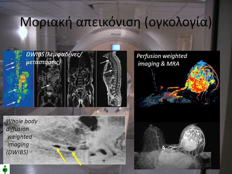 Μοριακή απεικόνιση (ογκολογία) Perfusion weighted imaging & MRA Whole body diffusion weighted imaging (DWIBS) DWIBS (λεμφαδένες/ μεταστάσεις)