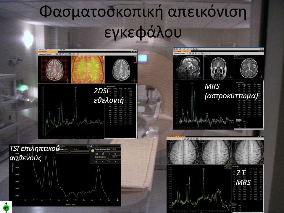 Φασματοσκοπική απεικόνιση εγκεφάλου 7 T MRS TSI επιληπτικού ασθενούς 2DSI εθελοντή MRS (αστροκύττωμα)