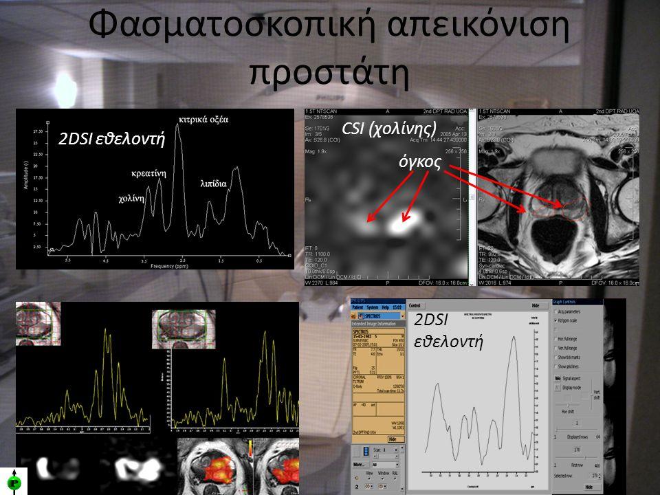 Φασματοσκοπική απεικόνιση προστάτη 2DSI εθελοντή CSI (χολίνης) όγκος