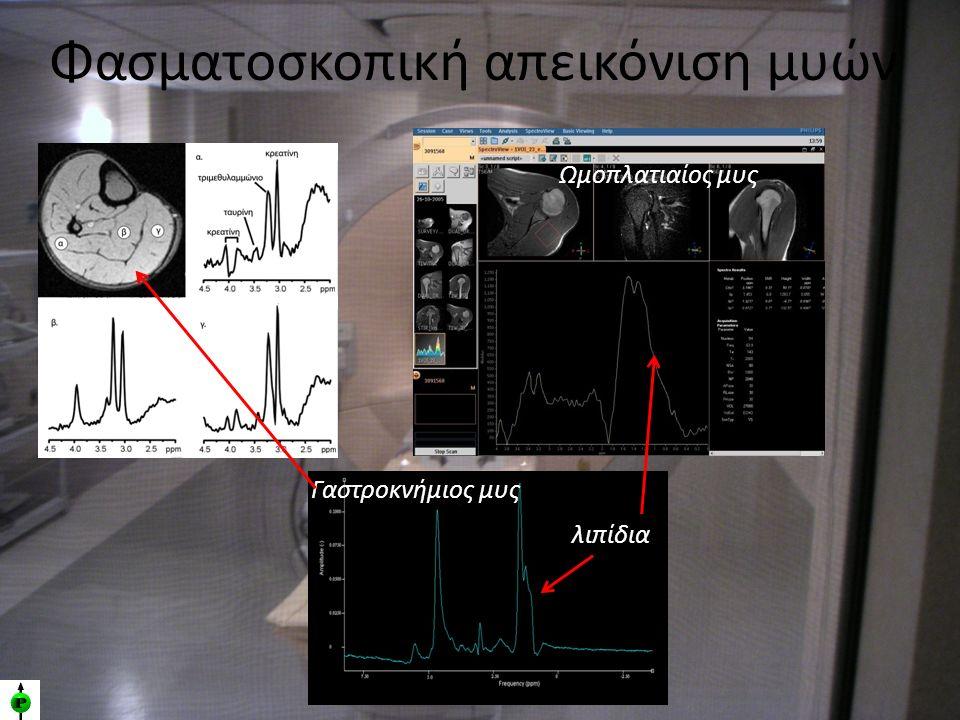 Φασματοσκοπική απεικόνιση μυών Γαστροκνήμιος μυς λιπίδια Ωμοπλατιαίος μυς