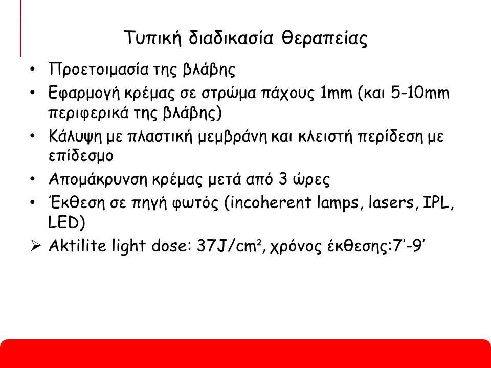 Τυπική διαδικασία θεραπείας Προετοιμασία της βλάβης Εφαρμογή κρέμας σε στρώμα πάχους 1mm (και 5-10mm περιφερικά της βλάβης) Κάλυψη με πλαστική μεμβράνη και κλειστή περίδεση με επίδεσμο Απομάκρυνση κρέμας μετά από 3 ώρες Έκθεση σε πηγή φωτός (incoherent lamps, lasers, IPL, LED)  Aktilite light dose: 37J/cm ², χρόνος έκθεσης:7'-9'