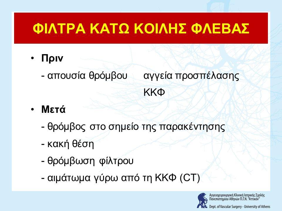 ΦΙΛΤΡΑ ΚΑΤΩ ΚΟΙΛΗΣ ΦΛΕΒΑΣ Πριν - απουσία θρόμβουαγγεία προσπέλασης ΚΚΦ Μετά - θρόμβος στο σημείο της παρακέντησης - κακή θέση - θρόμβωση φίλτρου - αιμάτωμα γύρω από τη ΚΚΦ (CT)