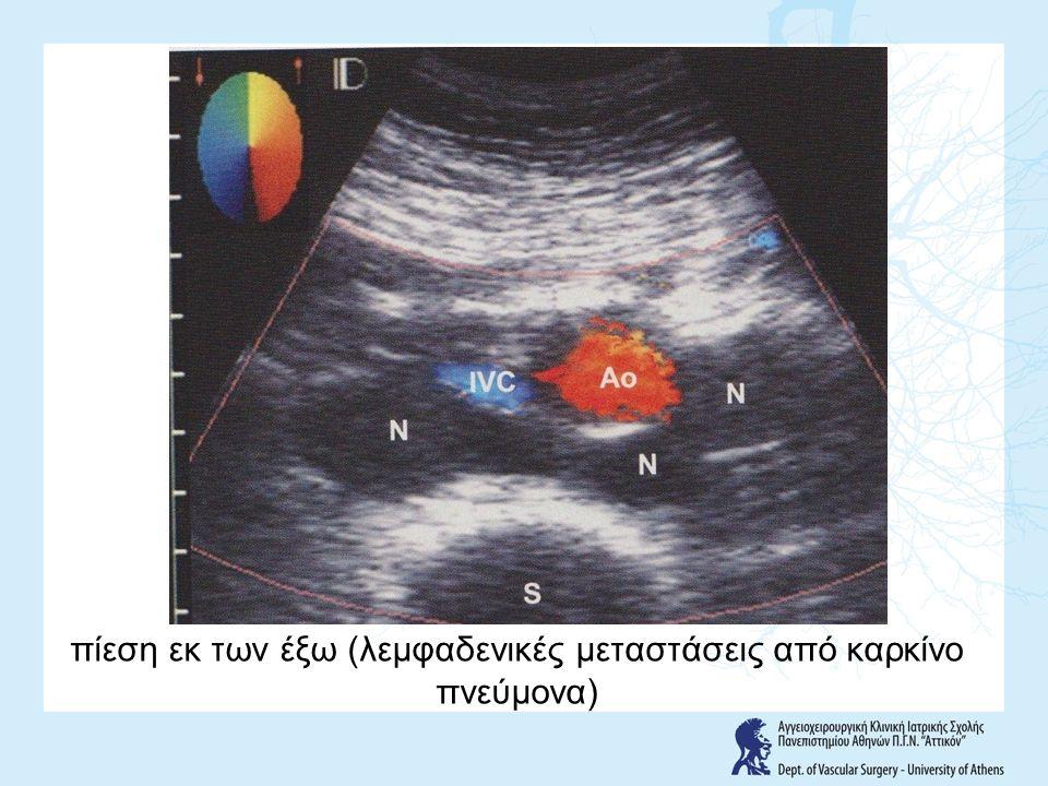 πίεση εκ των έξω (λεμφαδενικές μεταστάσεις από καρκίνο πνεύμονα)