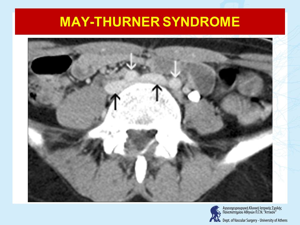 MAY-THURNER SYNDROME