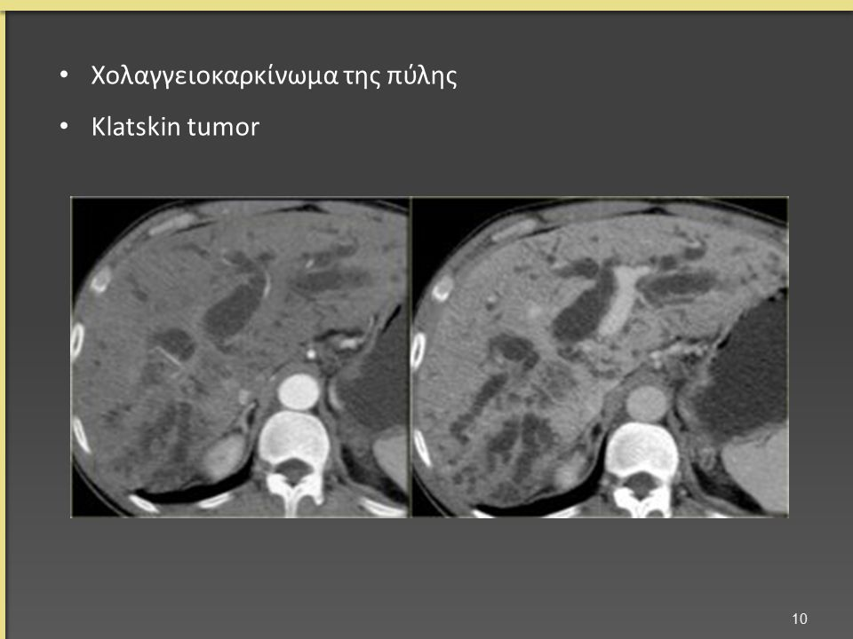 Χολαγγειοκαρκίνωμα της πύλης Klatskin tumor 10