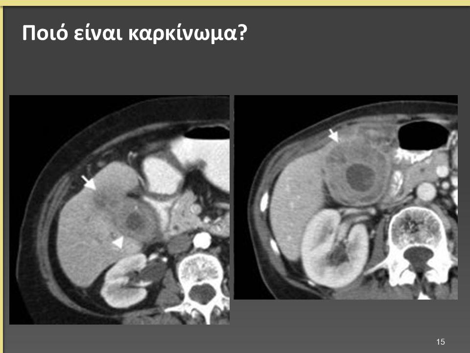Ποιό είναι καρκίνωμα? 15