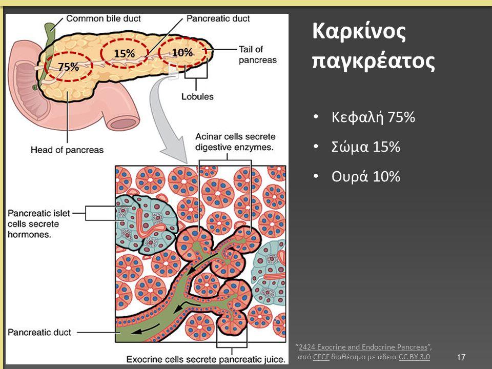 Καρκίνος παγκρέατος Κεφαλή 75% Σώμα 15% Ουρά 10% 17 75% 15% 10% 2424 Exocrine and Endocrine Pancreas , από CFCF διαθέσιμο με άδεια CC BY 3.02424 Exocrine and Endocrine PancreasCFCFCC BY 3.0