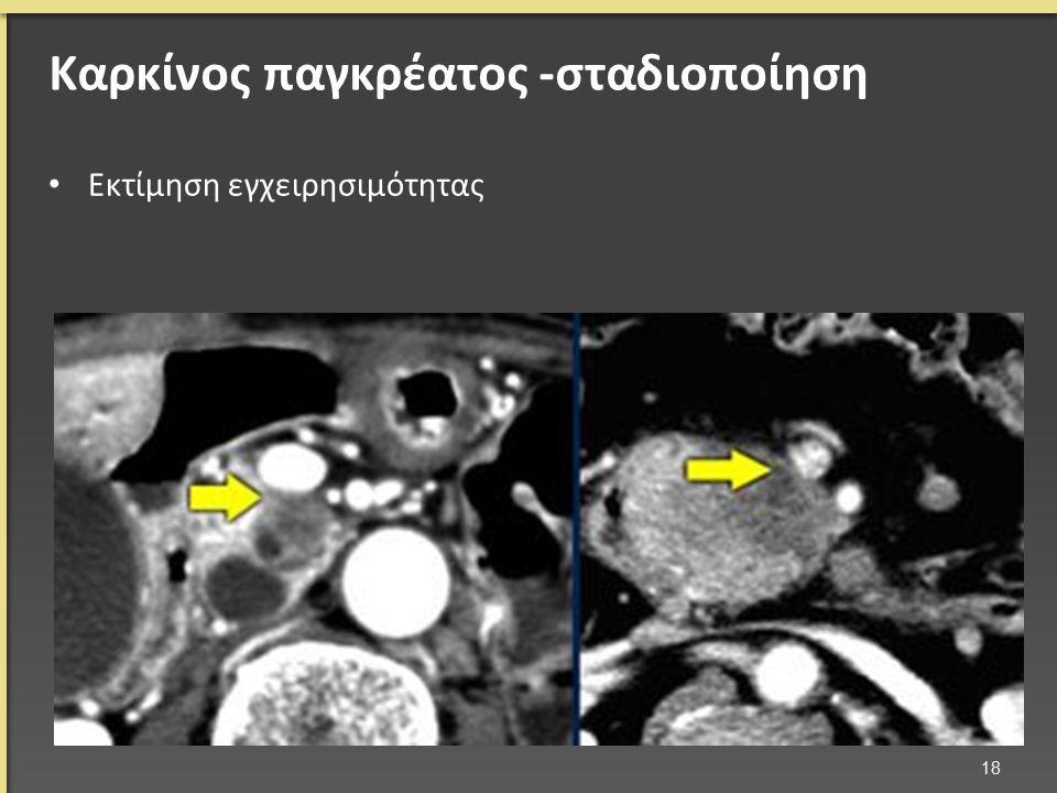 Καρκίνος παγκρέατος -σταδιοποίηση Εκτίμηση εγχειρησιμότητας 18