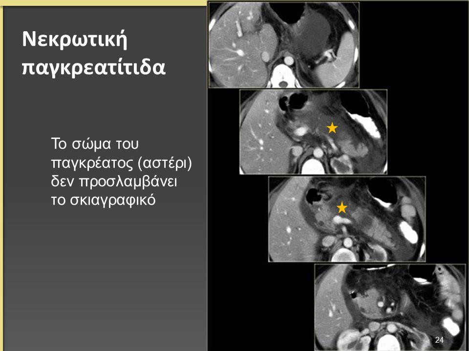 Νεκρωτική παγκρεατίτιδα 24 Το σώμα του παγκρέατος (αστέρι) δεν προσλαμβάνει το σκιαγραφικό