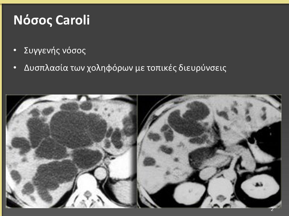 Νόσος Caroli Συγγενής νόσος Δυσπλασία των χοληφόρων με τοπικές διευρύνσεις 2