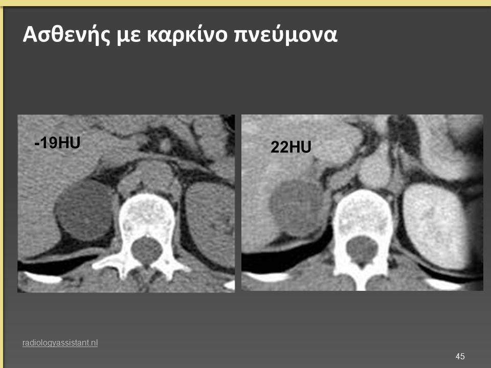 Ασθενής με καρκίνο πνεύμονα -19HU 22HU 45 radiologyassistant.nl