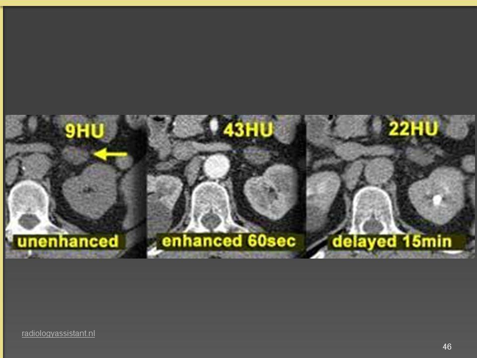 46 radiologyassistant.nl
