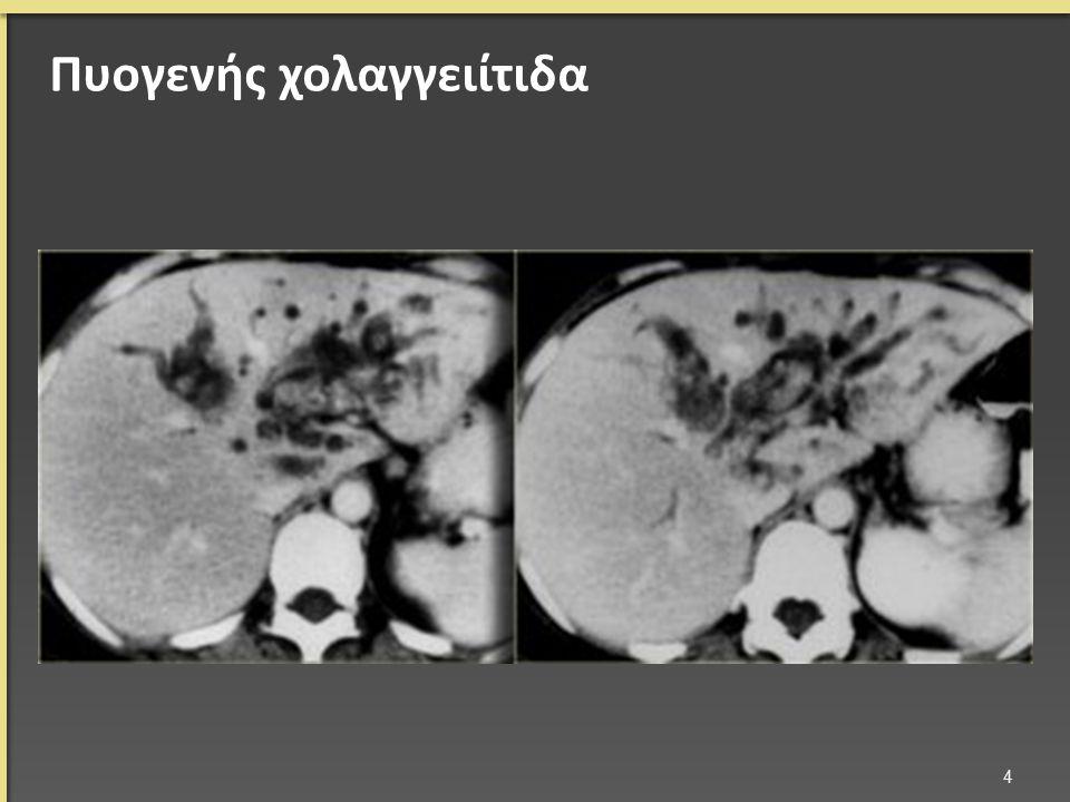 Πυογενής χολαγγειίτιδα 4