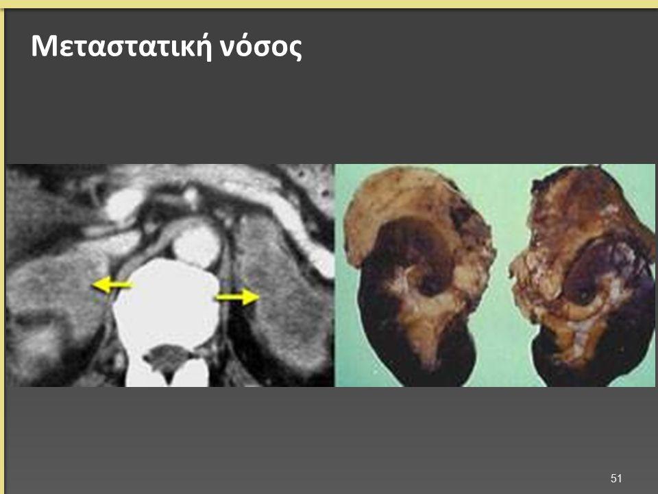 Μεταστατική νόσος 51