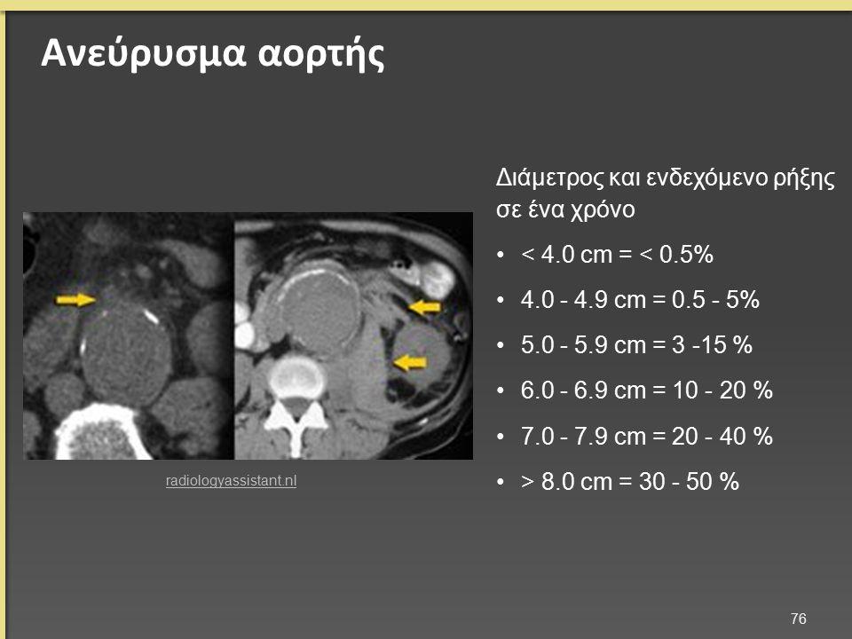 Ανεύρυσμα αορτής 76 radiologyassistant.nl Διάμετρος και ενδεχόμενο ρήξης σε ένα χρόνο < 4.0 cm = < 0.5% 4.0 - 4.9 cm = 0.5 - 5% 5.0 - 5.9 cm = 3 -15 % 6.0 - 6.9 cm = 10 - 20 % 7.0 - 7.9 cm = 20 - 40 % > 8.0 cm = 30 - 50 %