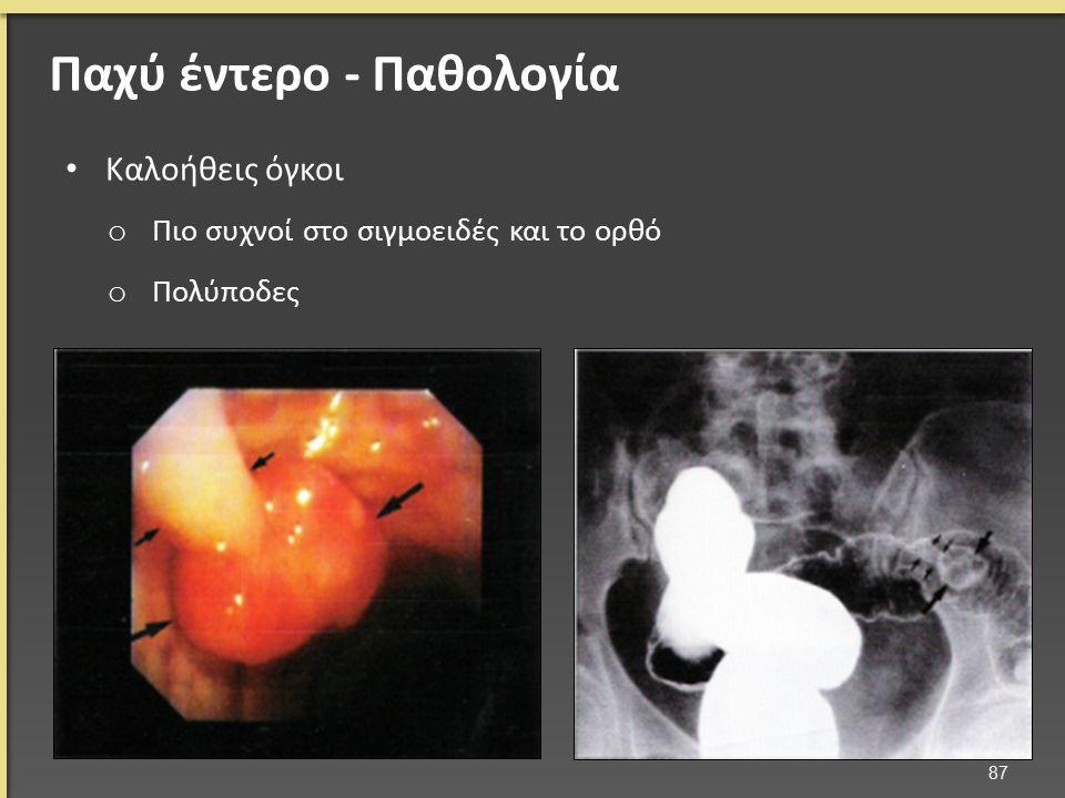 Καλοήθεις όγκοι o Πιο συχνοί στο σιγμοειδές και το ορθό o Πολύποδες 87 Παχύ έντερο - Παθολογία
