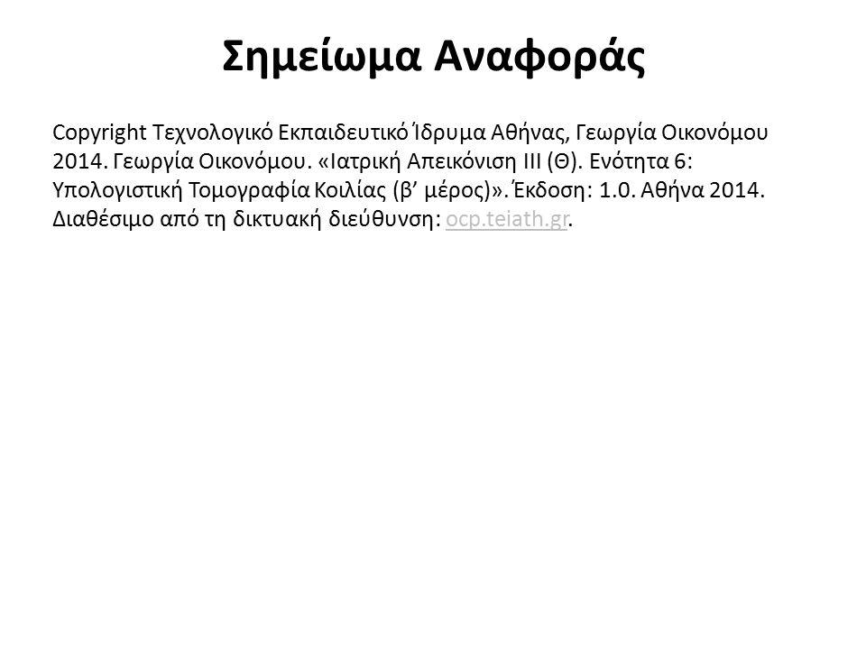 Σημείωμα Αναφοράς Copyright Τεχνολογικό Εκπαιδευτικό Ίδρυμα Αθήνας, Γεωργία Οικονόμου 2014. Γεωργία Οικονόμου. «Ιατρική Απεικόνιση ΙΙΙ (Θ). Ενότητα 6: