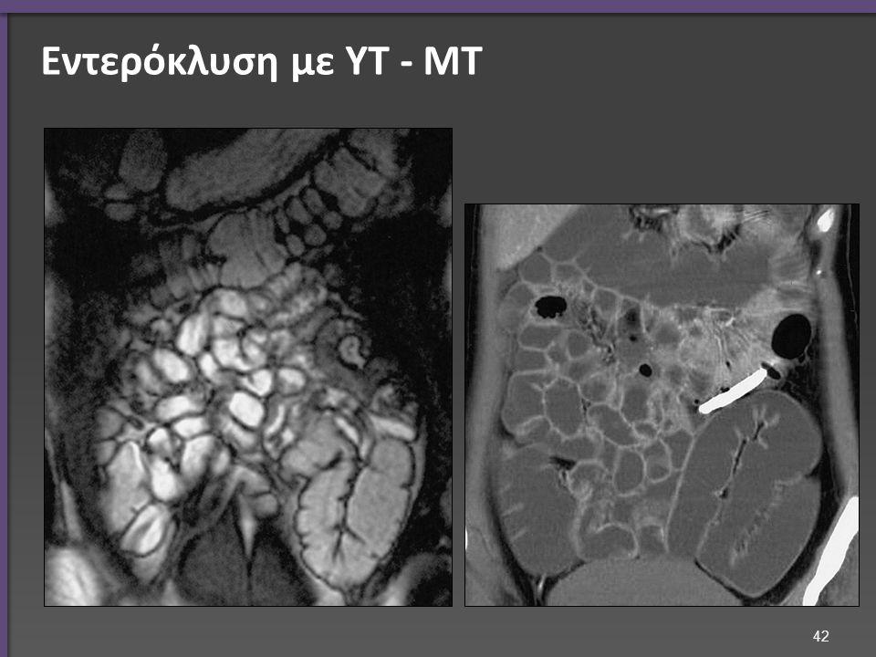 Εντερόκλυση με ΥΤ - ΜΤ 42