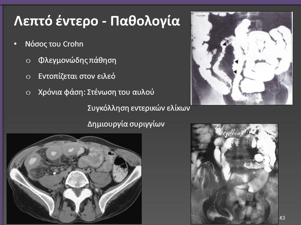 Νόσος του Crohn o Φλεγμονώδης πάθηση o Εντοπίζεται στον ειλεό o Χρόνια φάση: Στένωση του αυλού Συγκόλληση εντερικών ελίκων Δημιουργία συριγγίων 43 Λεπτό έντερο - Παθολογία