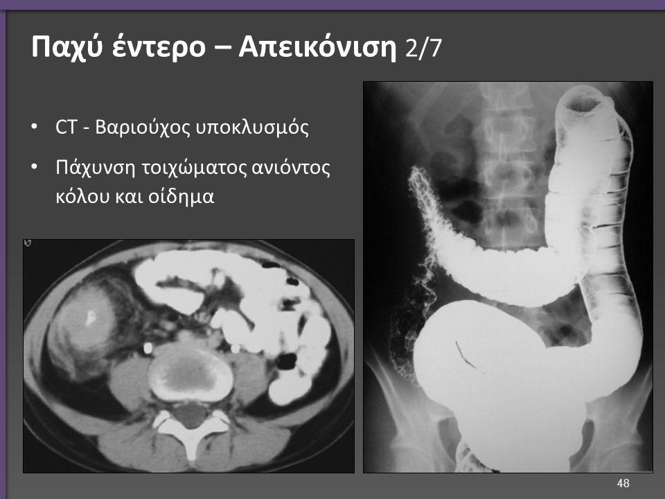 Παχύ έντερο – Απεικόνιση 2/7 CT - Βαριούχος υποκλυσμός Πάχυνση τοιχώματος ανιόντος κόλου και οίδημα 48