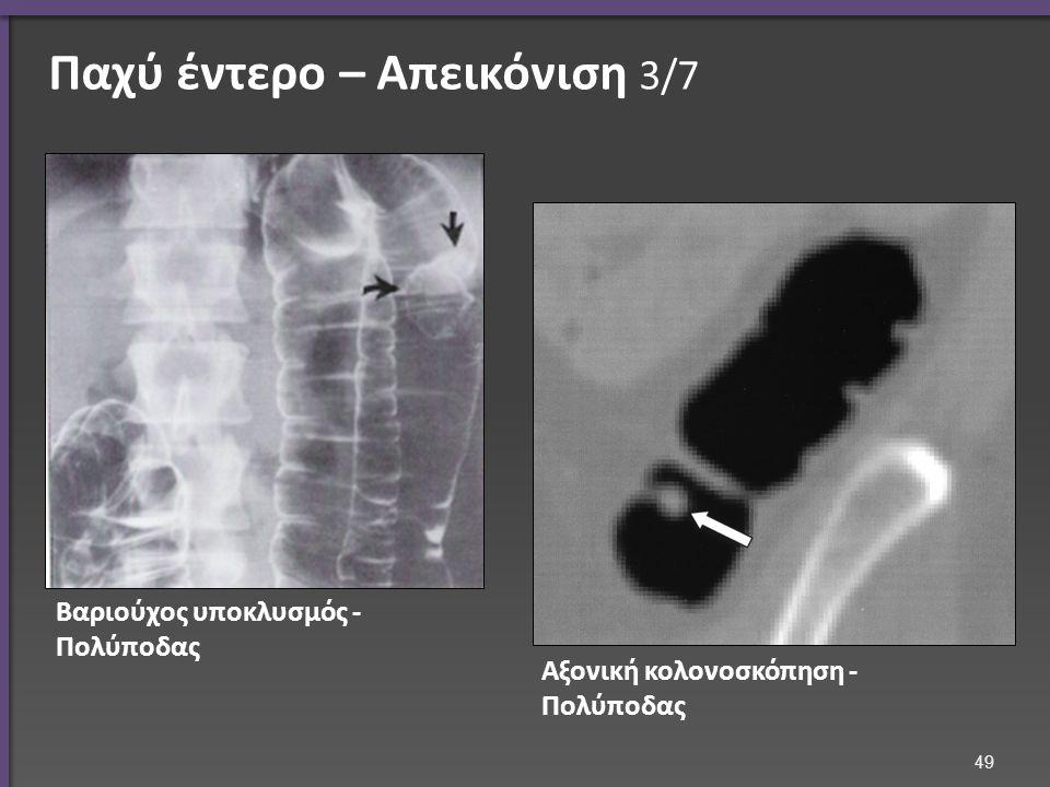 Παχύ έντερο – Απεικόνιση 3/7 Βαριούχος υποκλυσμός - Πολύποδας Αξονική κολονοσκόπηση - Πολύποδας 49