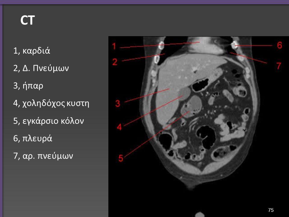CT 1, καρδιά 2, Δ. Πνεύμων 3, ήπαρ 4, χοληδόχος κυστη 5, εγκάρσιο κόλον 6, πλευρά 7, αρ. πνεύμων 75