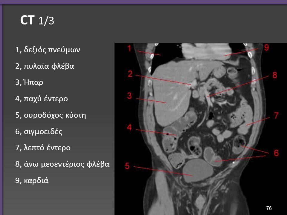 CT 1/3 1, δεξιός πνεύμων 2, πυλαία φλέβα 3, Ήπαρ 4, παχύ έντερο 5, ουροδόχος κύστη 6, σιγμοειδές 7, λεπτό έντερο 8, άνω μεσεντέριος φλέβα 9, καρδιά 76
