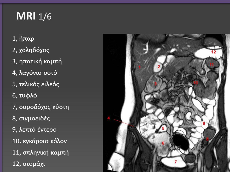 ΜRI 1/6 1, ήπαρ 2, χοληδόχος 3, ηπατική καμπή 4, λαγόνιο οστό 5, τελικός ειλεός 6, τυφλό 7, ουροδόχος κύστη 8, σιγμοειδές 9, λεπτό έντερο 10, εγκάρσιο