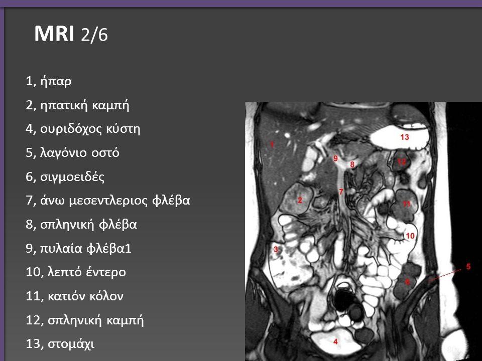 ΜRI 2/6 1, ήπαρ 2, ηπατική καμπή 4, ουριδόχος κύστη 5, λαγόνιο οστό 6, σιγμοειδές 7, άνω μεσεντλεριος φλέβα 8, σπληνική φλέβα 9, πυλαία φλέβα1 10, λεπτό έντερο 11, κατιόν κόλον 12, σπληνική καμπή 13, στομάχι 80