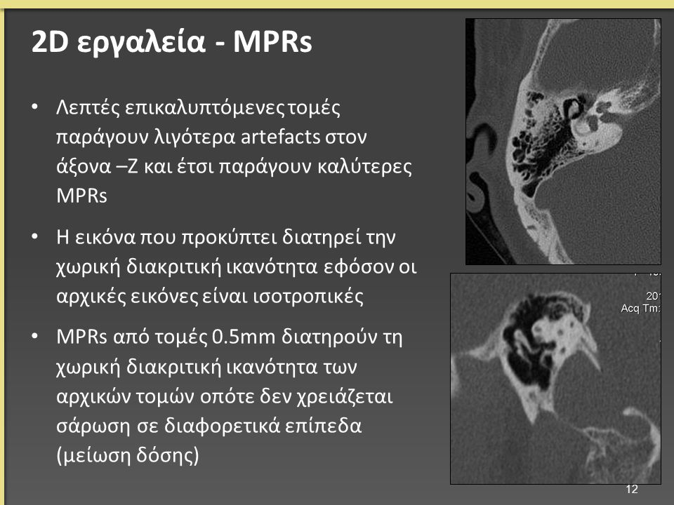Λεπτές επικαλυπτόμενες τομές παράγουν λιγότερα artefacts στον άξονα –Ζ και έτσι παράγουν καλύτερες MPRs Η εικόνα που προκύπτει διατηρεί την χωρική διακριτική ικανότητα εφόσον οι αρχικές εικόνες είναι ισοτροπικές MPRs από τομές 0.5mm διατηρούν τη χωρική διακριτική ικανότητα των αρχικών τομών οπότε δεν χρειάζεται σάρωση σε διαφορετικά επίπεδα (μείωση δόσης) 12 2D εργαλεία - MPRs