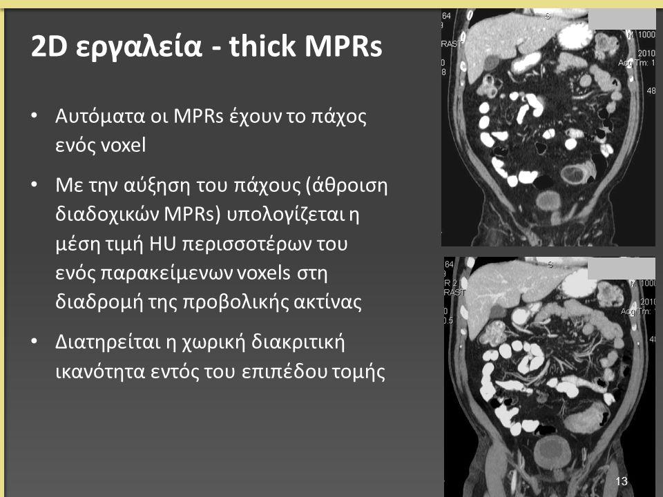 Αυτόματα οι MPRs έχουν το πάχος ενός voxel Με την αύξηση του πάχους (άθροιση διαδοχικών MPRs) υπολογίζεται η μέση τιμή HU περισσοτέρων του ενός παρακείμενων voxels στη διαδρομή της προβολικής ακτίνας Διατηρείται η χωρική διακριτική ικανότητα εντός του επιπέδου τομής 13 2D εργαλεία - thick MPRs