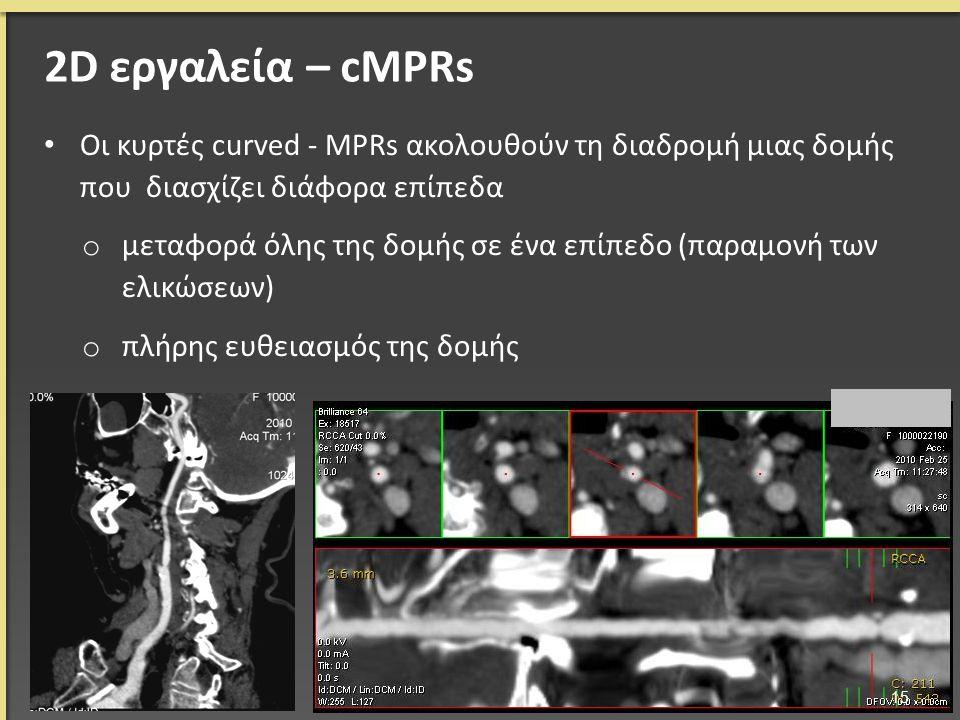 Οι κυρτές curved - MPRs ακολουθούν τη διαδρομή μιας δομής που διασχίζει διάφορα επίπεδα o μεταφορά όλης της δομής σε ένα επίπεδο (παραμονή των ελικώσε
